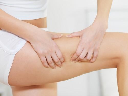 come combattere la cellulite,cellulite, metodi naturali per combattere la cellulite,dieta,