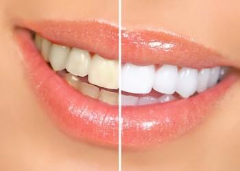 sbiancamento cura dei denti,sbiancamento denti metodi e consigli,come avere i denti bianchi